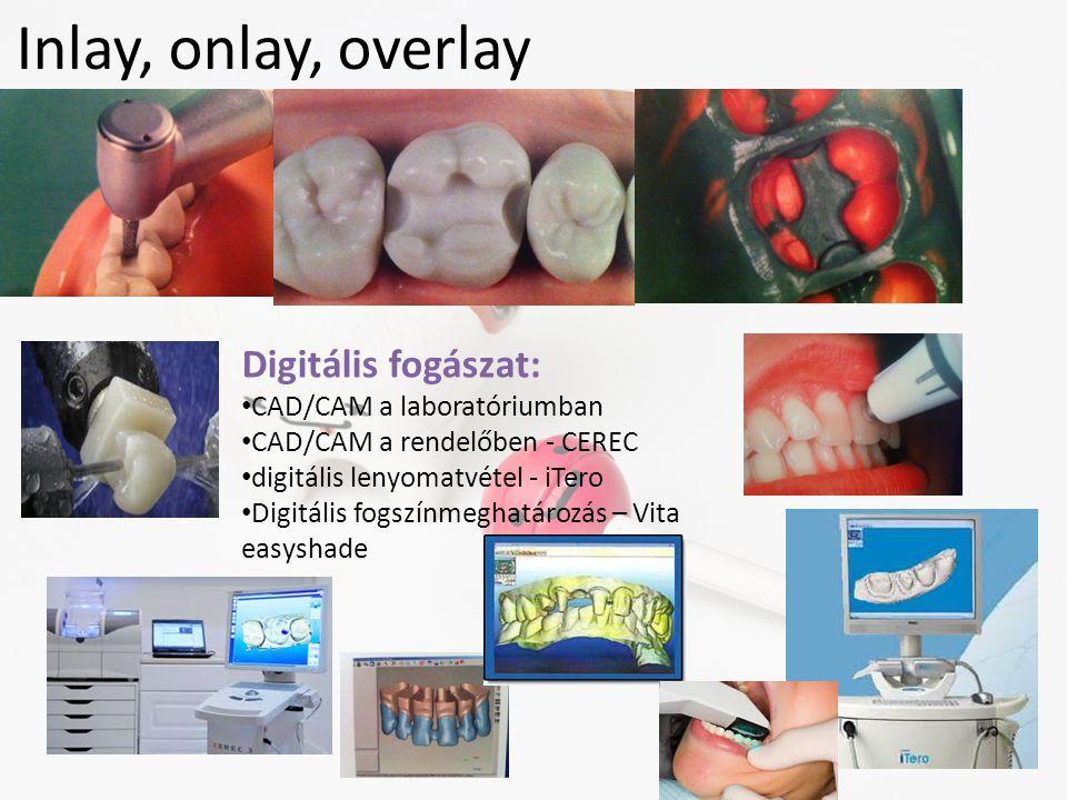 Inlay, onlay, overlay Digitális fogászat: CAD/CAM a laboratóriumban