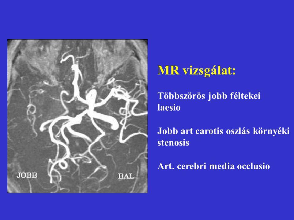 MR vizsgálat: Többszörös jobb féltekei laesio