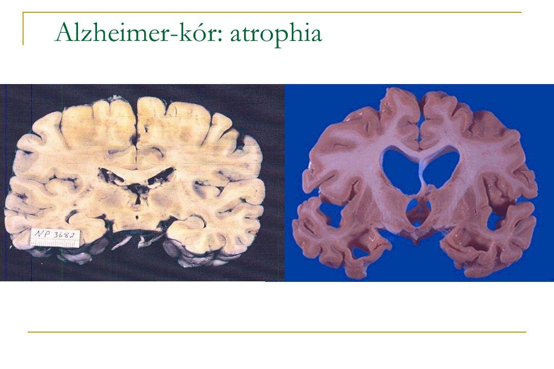 Alzheimer-kór: atrophia