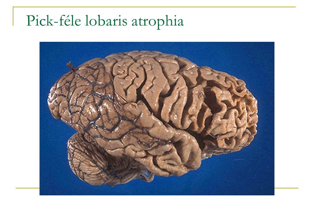 Pick-féle lobaris atrophia