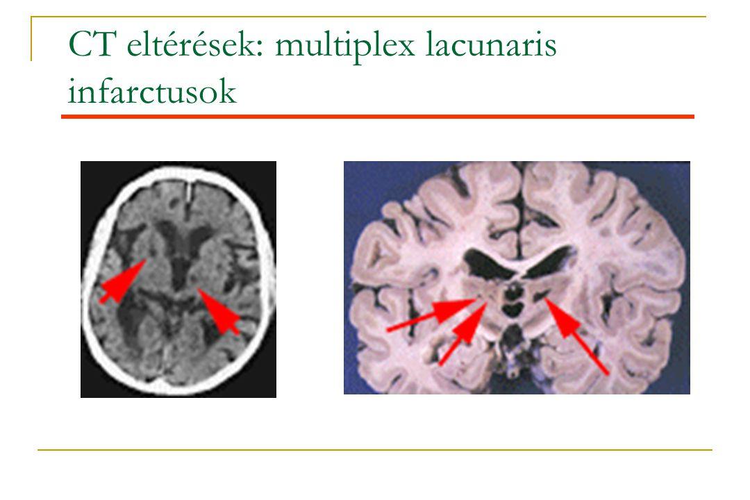 CT eltérések: multiplex lacunaris infarctusok