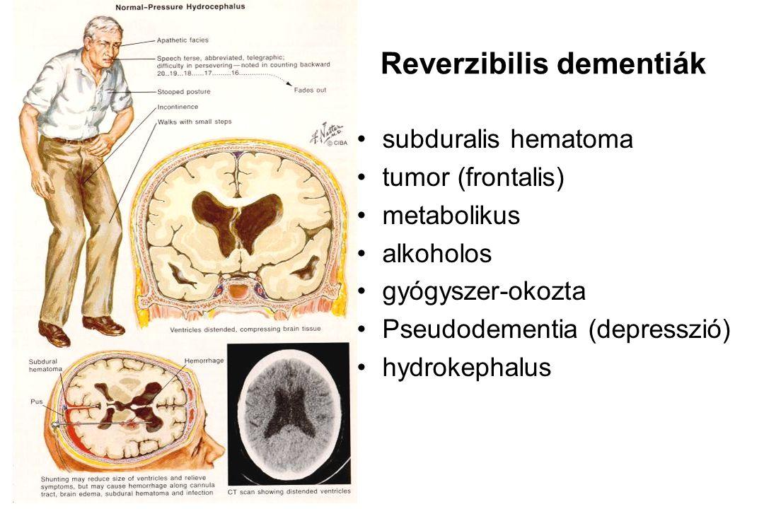 Reverzibilis dementiák