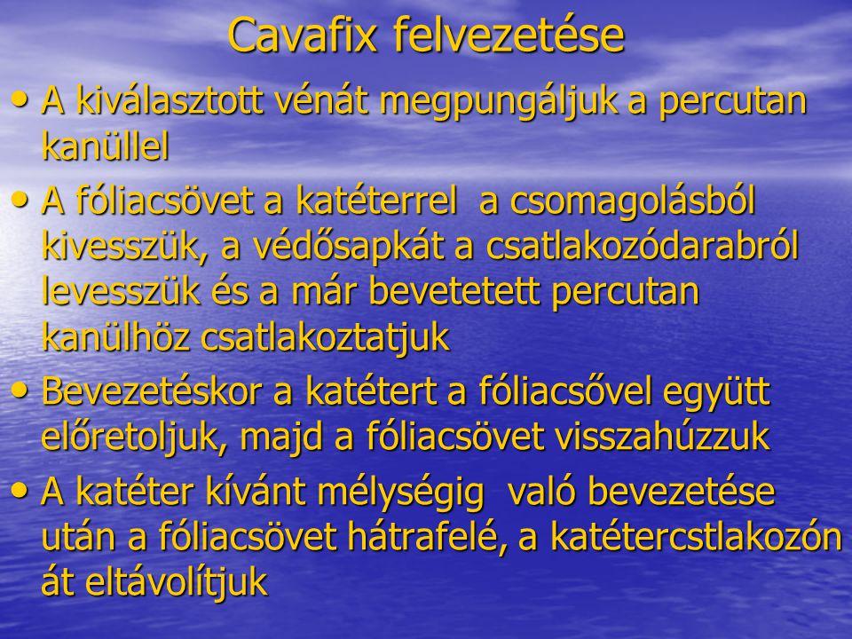 Cavafix felvezetése A kiválasztott vénát megpungáljuk a percutan kanüllel.