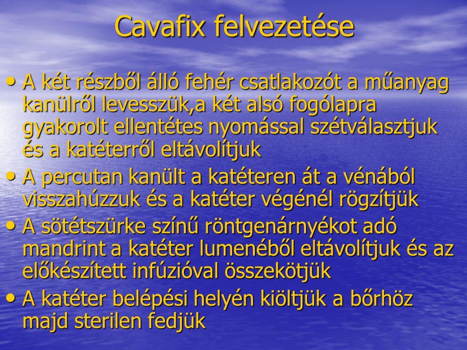 Cavafix felvezetése