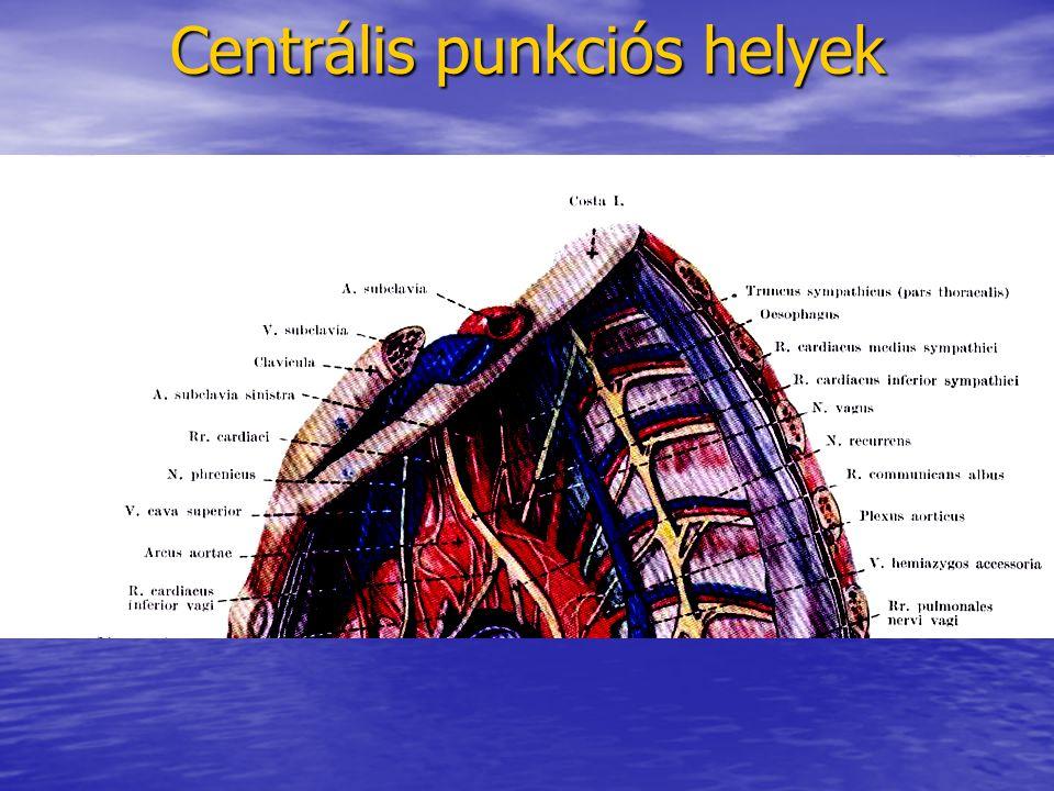 Centrális punkciós helyek