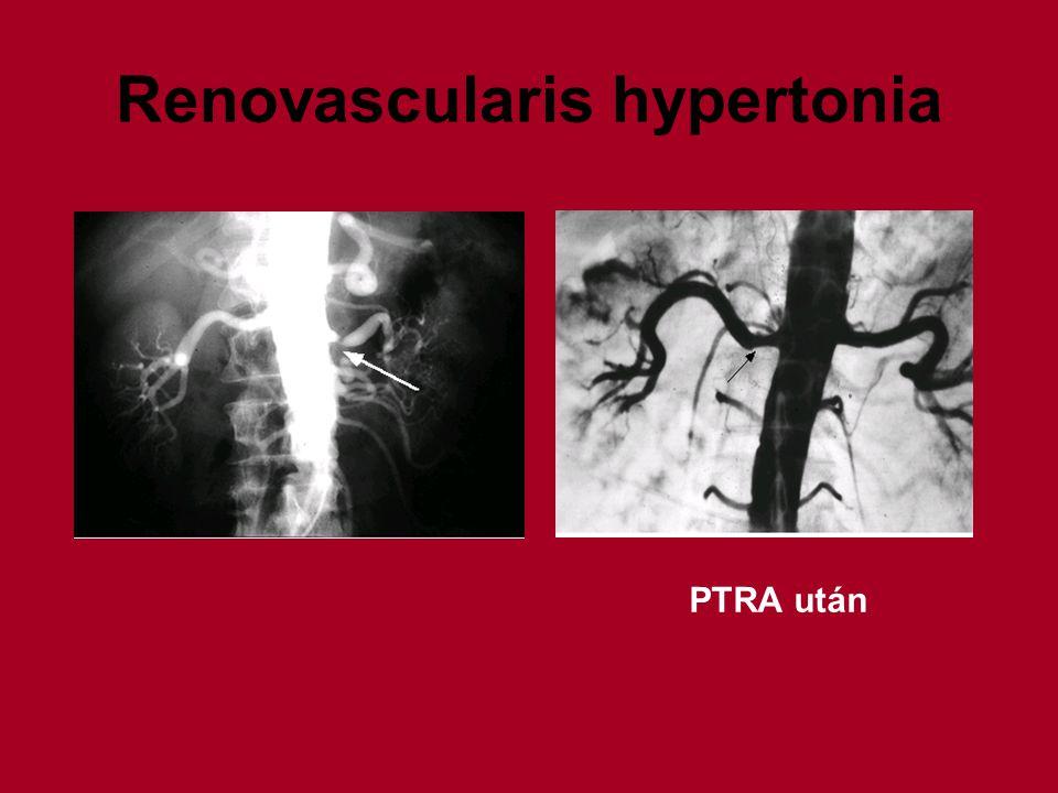 Renovascularis hypertonia