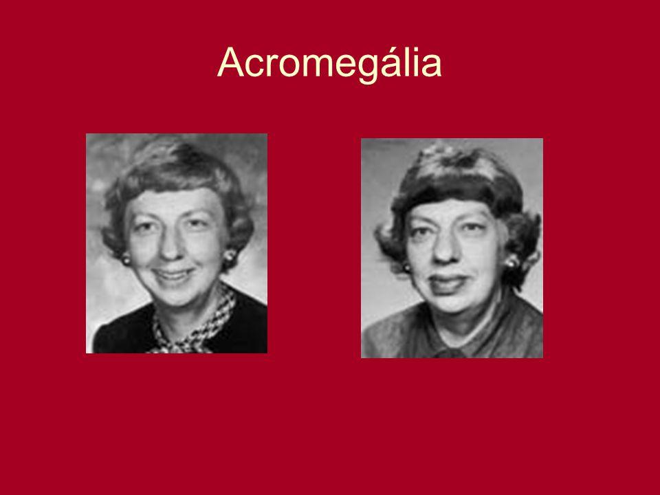 Acromegália