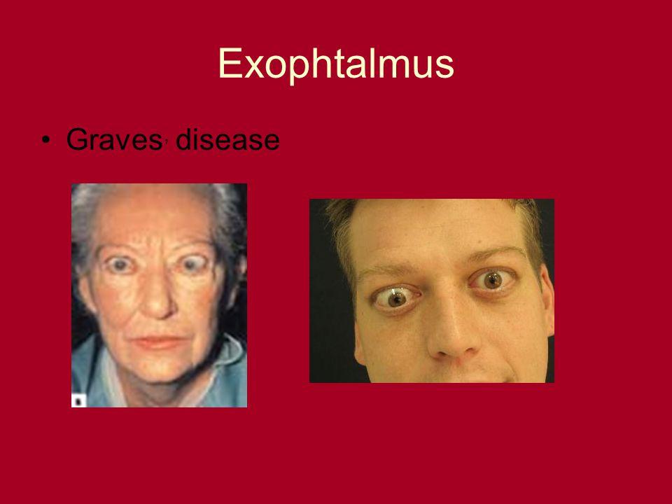 Exophtalmus Graves, disease