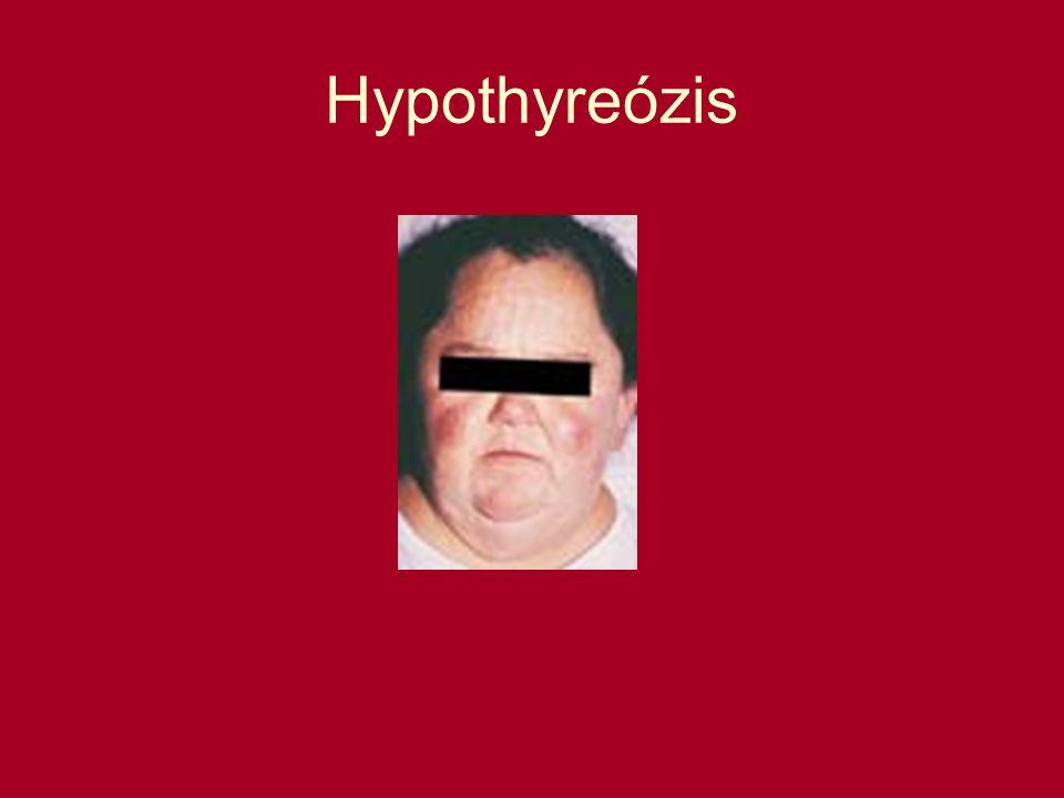 Hypothyreózis