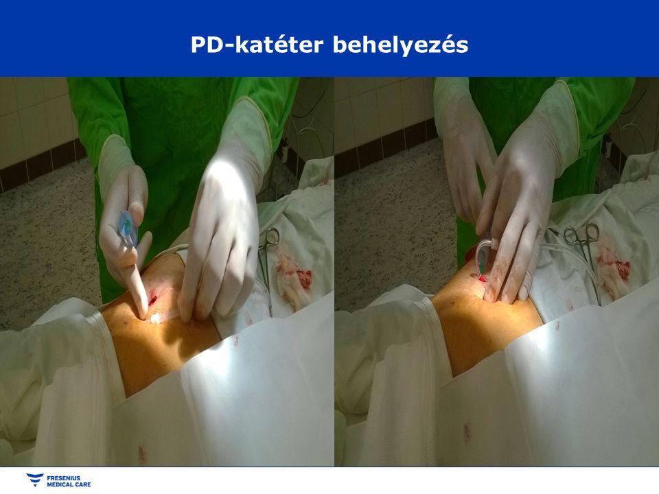 PD-katéter behelyezés