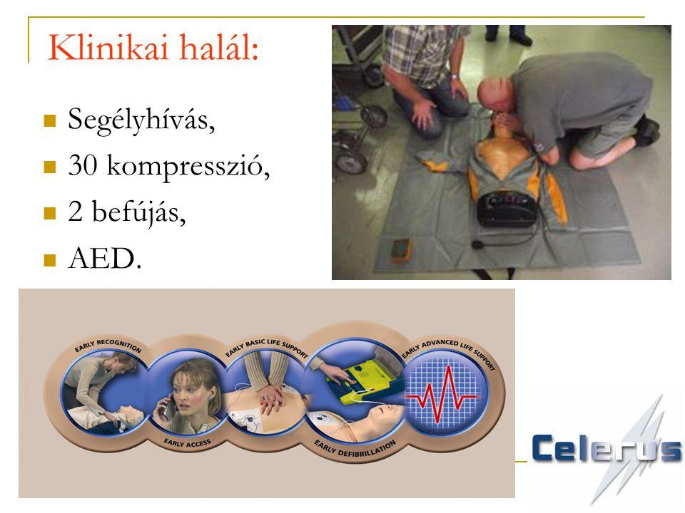 Klinikai halál: Segélyhívás, 30 kompresszió, 2 befújás, AED.