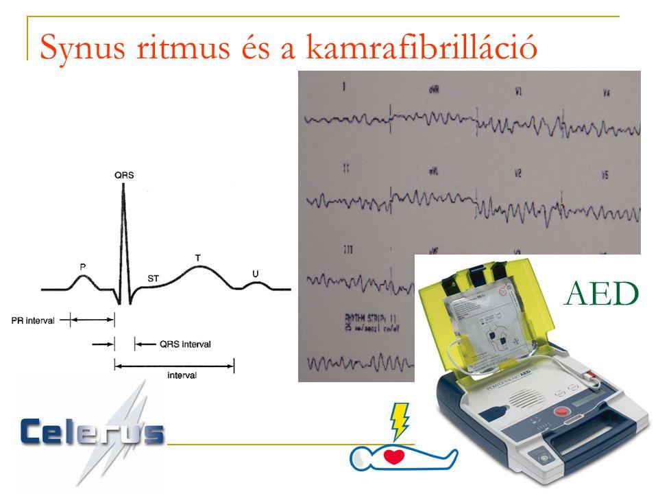 Synus ritmus és a kamrafibrilláció