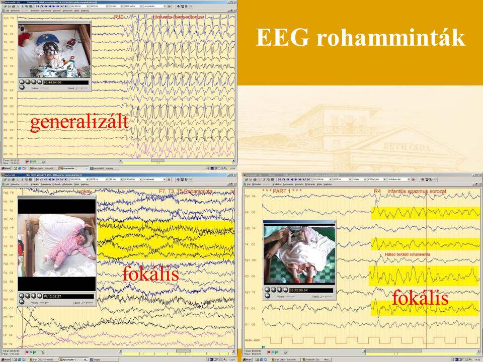 EEG rohamminták generalizált fokális fokális