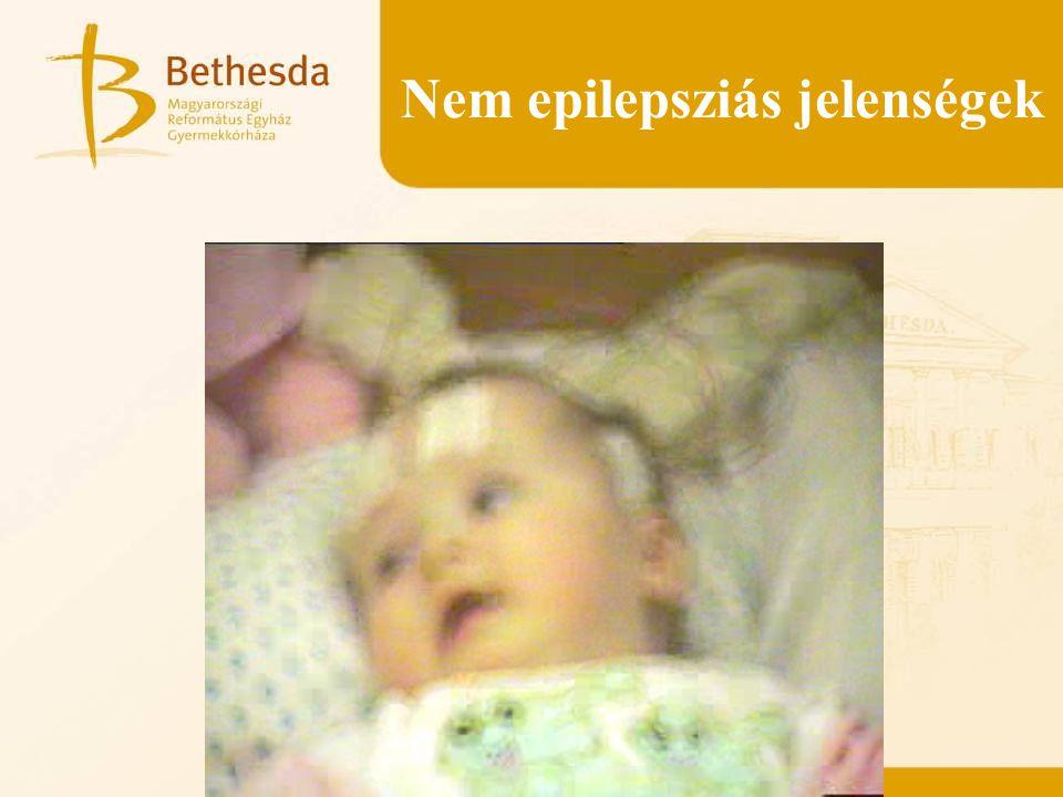 Nem epilepsziás jelenségek