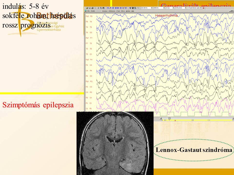 Generalizált epilepszia