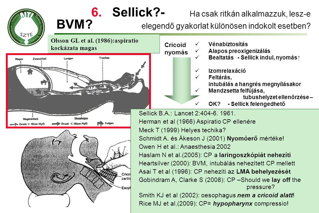 6. Sellick. -. Ha csak ritkán alkalmazzuk, lesz-e BVM