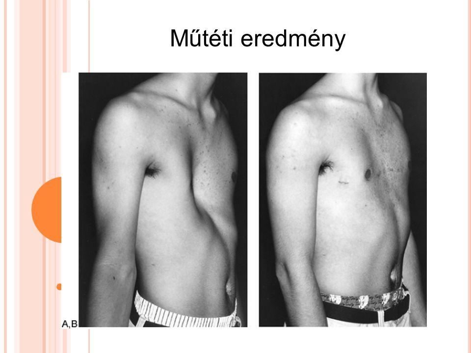Műtéti eredmény