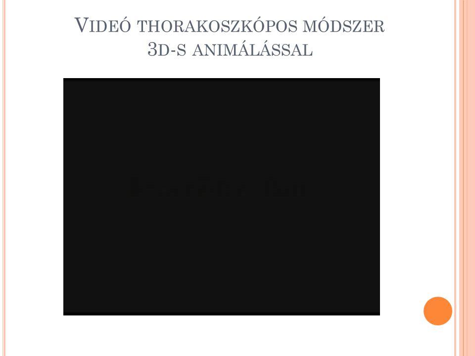 Videó thorakoszkópos módszer 3d-s animálással