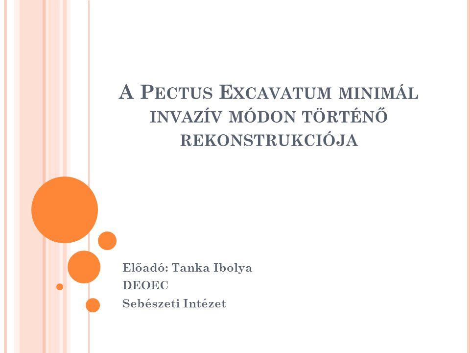 A Pectus Excavatum minimál invazív módon történő rekonstrukciója
