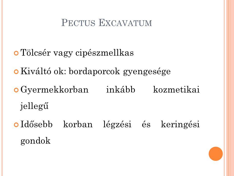 Pectus Excavatum Tölcsér vagy cipészmellkas