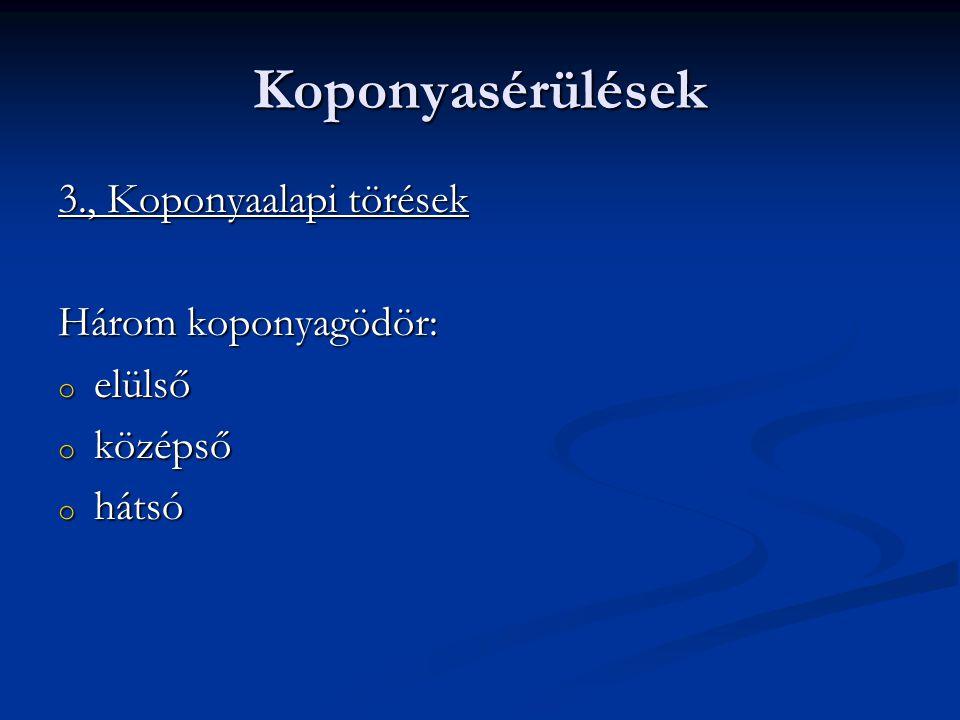 Koponyasérülések 3., Koponyaalapi törések Három koponyagödör: elülső