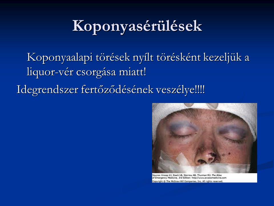 Koponyasérülések Koponyaalapi törések nyílt törésként kezeljük a liquor-vér csorgása miatt.