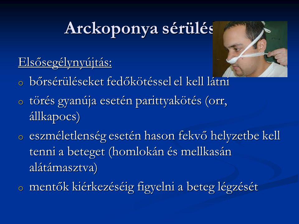 Arckoponya sérülések Elsősegélynyújtás: