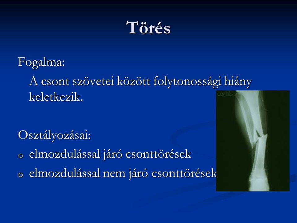 Törés Fogalma: A csont szövetei között folytonossági hiány keletkezik.