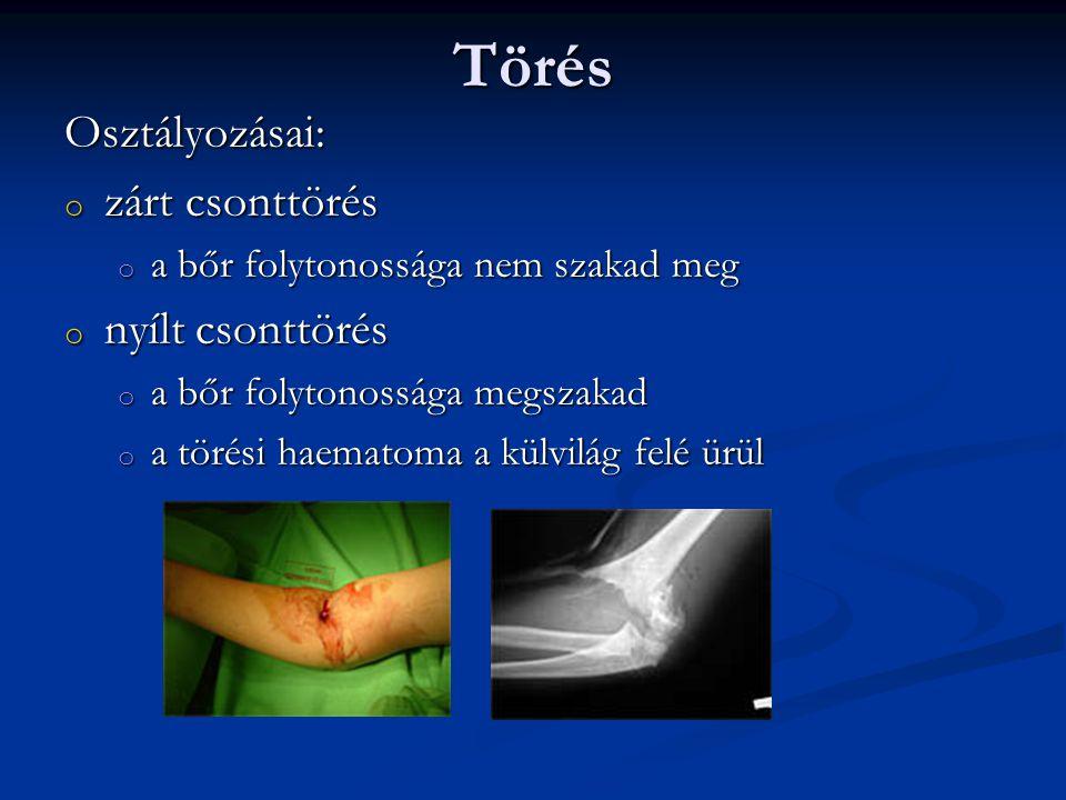 Törés Osztályozásai: zárt csonttörés nyílt csonttörés