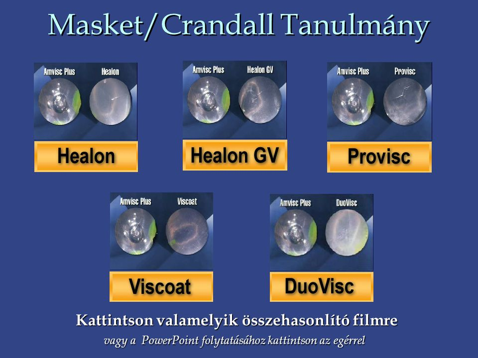 Masket/Crandall Tanulmány