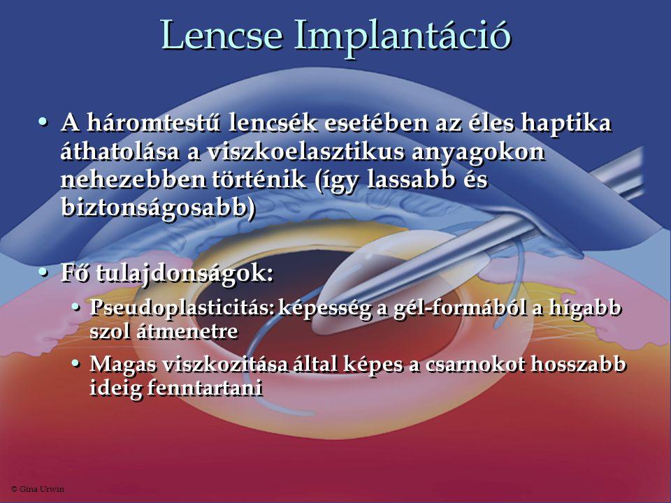 Lencse Implantáció