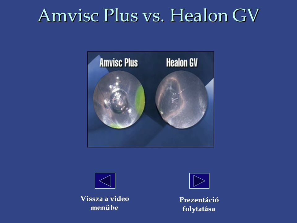 Amvisc Plus vs. Healon GV