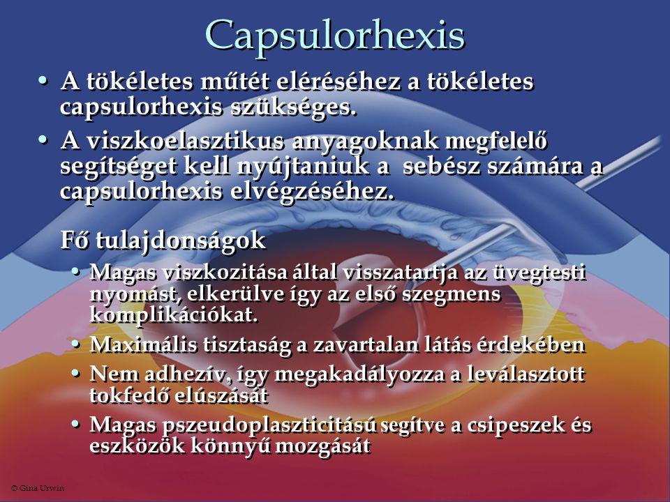 Capsulorhexis A tökéletes műtét eléréséhez a tökéletes capsulorhexis szükséges.