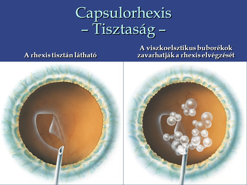 Capsulorhexis – Tisztaság –