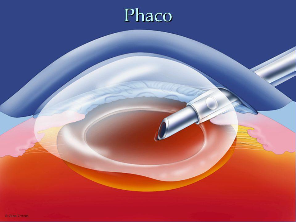 Phaco © Gina Urwin