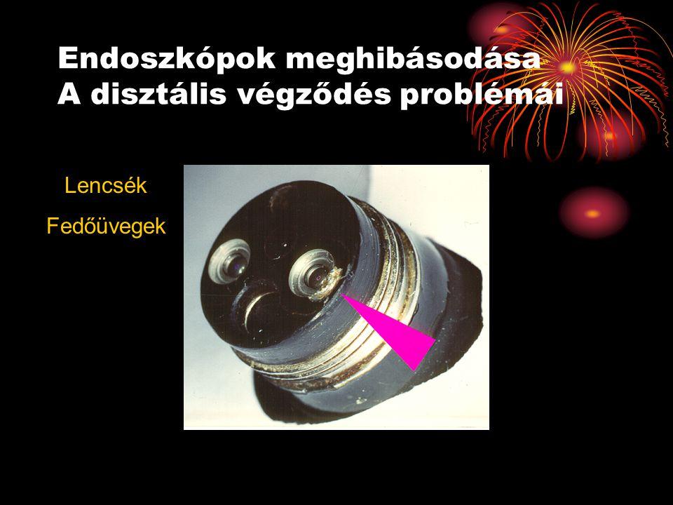 Endoszkópok meghibásodása A disztális végződés problémái