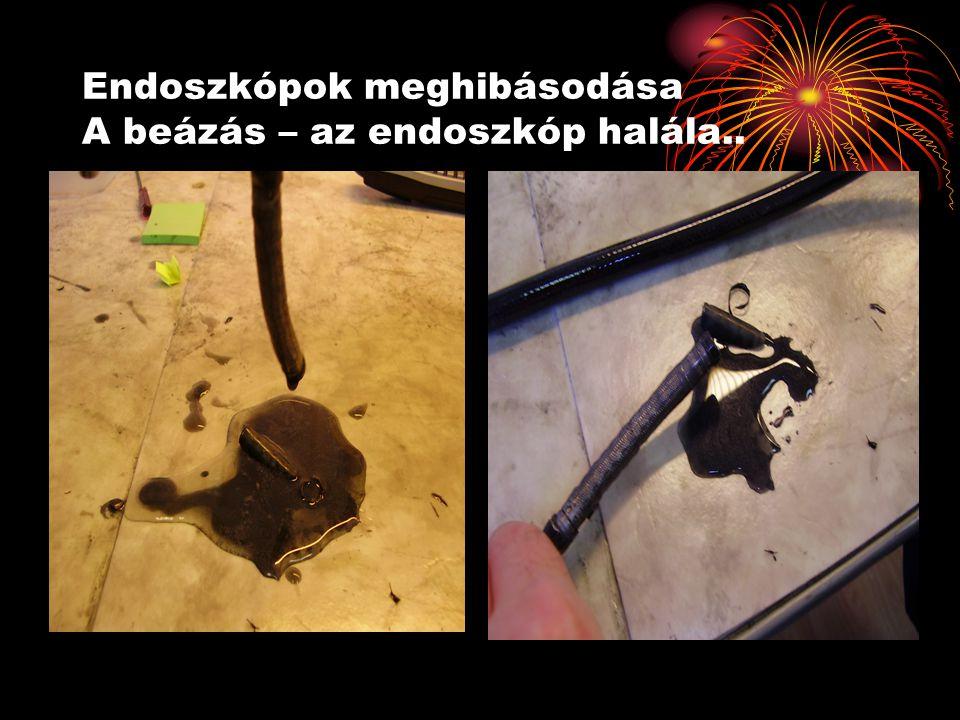Endoszkópok meghibásodása A beázás – az endoszkóp halála..