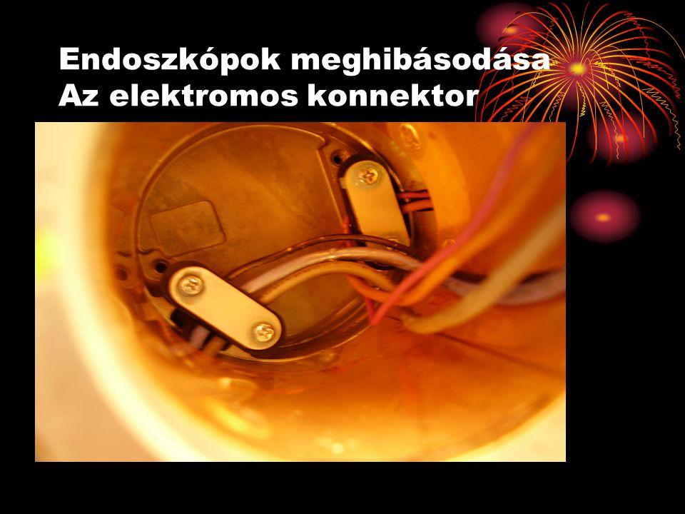 Endoszkópok meghibásodása Az elektromos konnektor