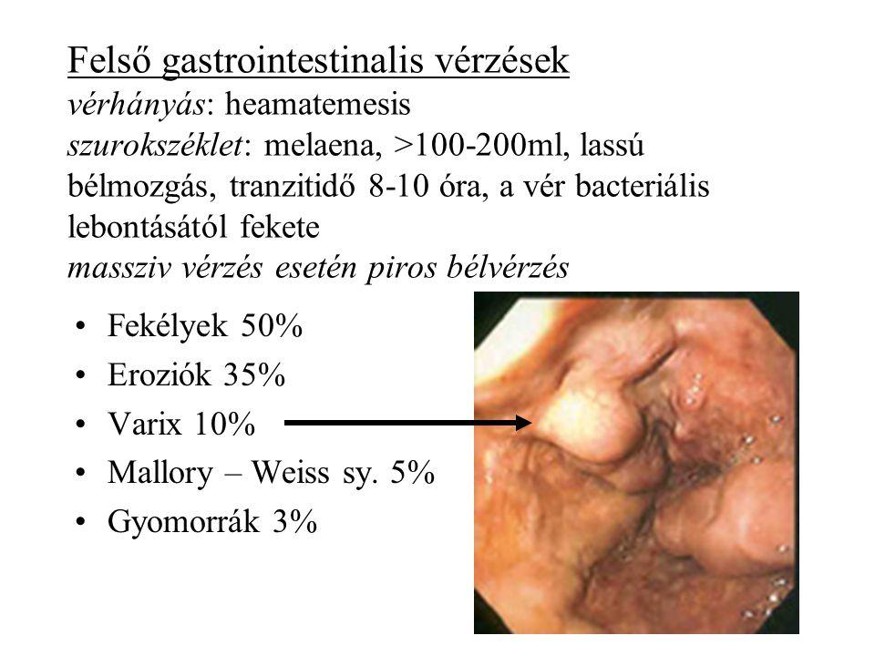 Felső gastrointestinalis vérzések vérhányás: heamatemesis szurokszéklet: melaena, >100-200ml, lassú bélmozgás, tranzitidő 8-10 óra, a vér bacteriális lebontásától fekete massziv vérzés esetén piros bélvérzés
