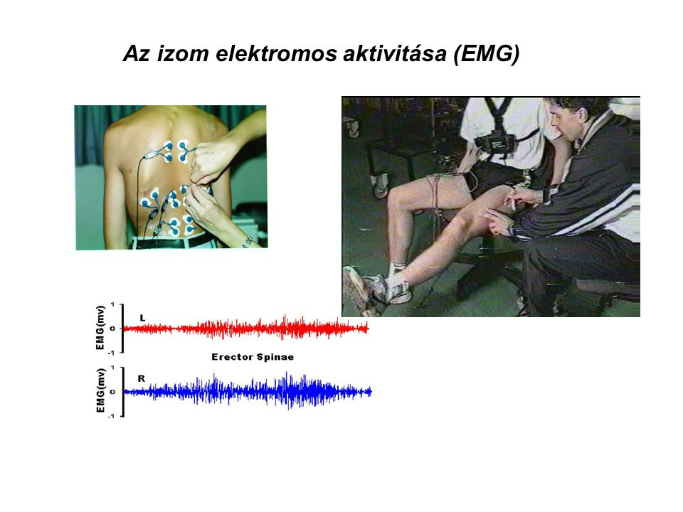 Az izom elektromos aktivitása (EMG)