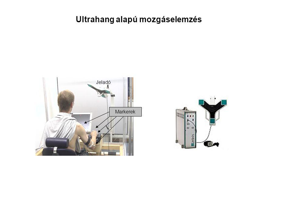 Ultrahang alapú mozgáselemzés