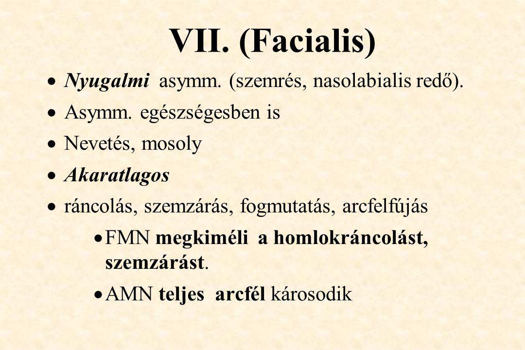 VII. (Facialis) Nyugalmi asymm. (szemrés, nasolabialis redő).