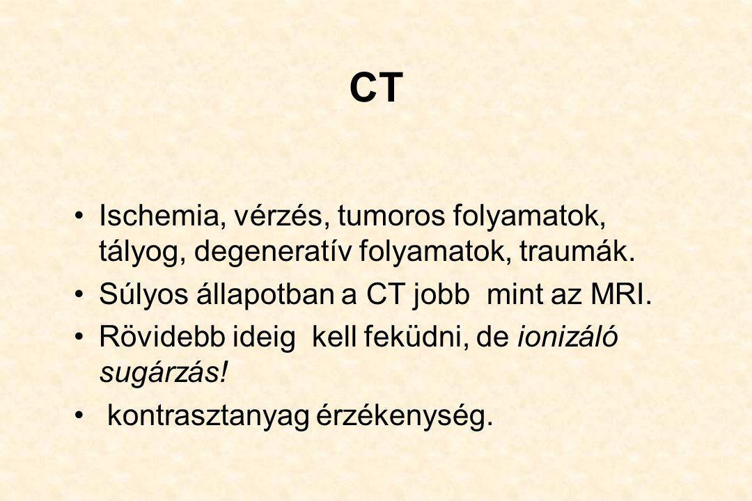 CT Ischemia, vérzés, tumoros folyamatok, tályog, degeneratív folyamatok, traumák. Súlyos állapotban a CT jobb mint az MRI.