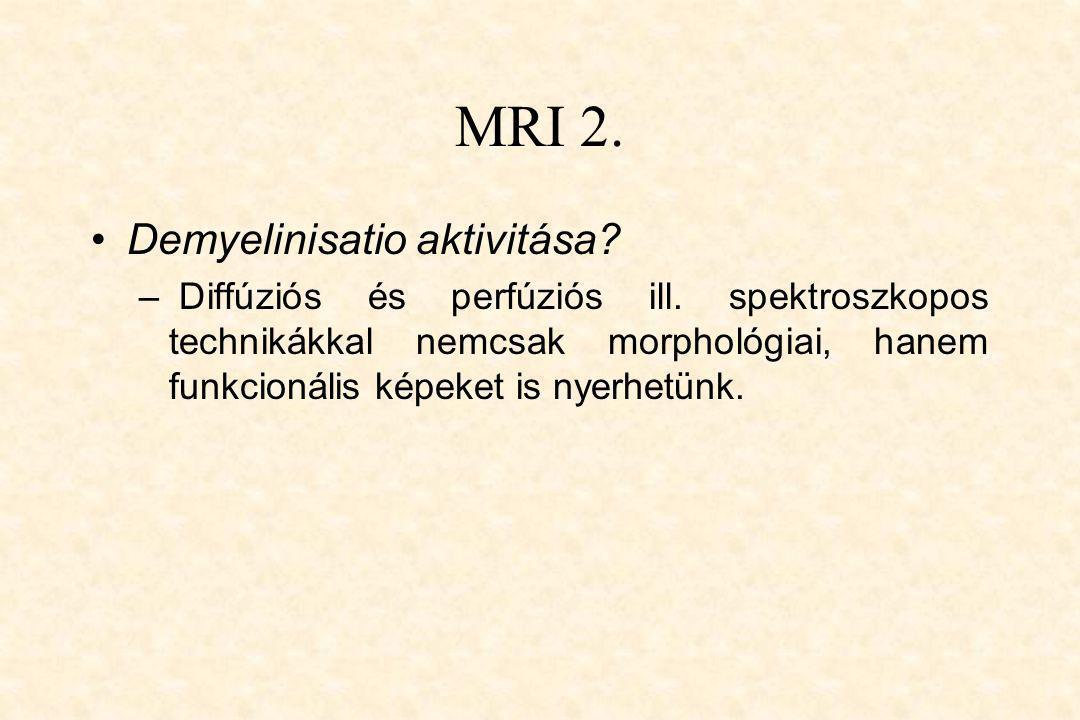 MRI 2. Demyelinisatio aktivitása