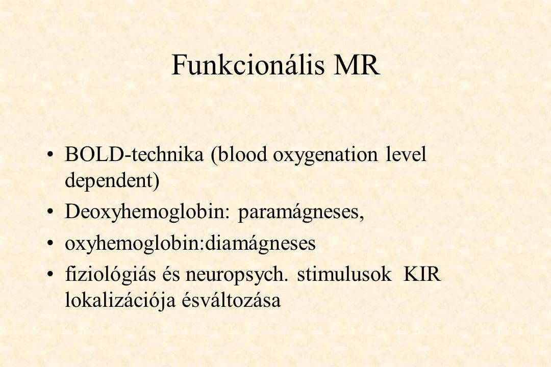 Funkcionális MR BOLD-technika (blood oxygenation level dependent)