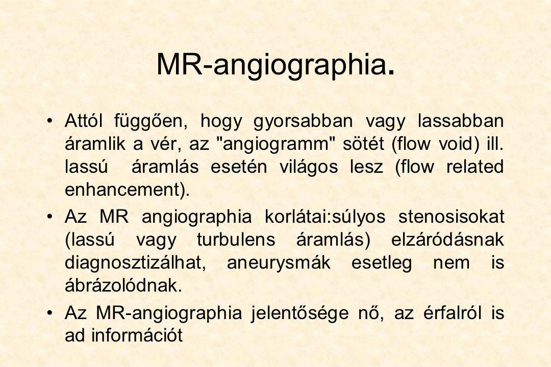 MR-angiographia.
