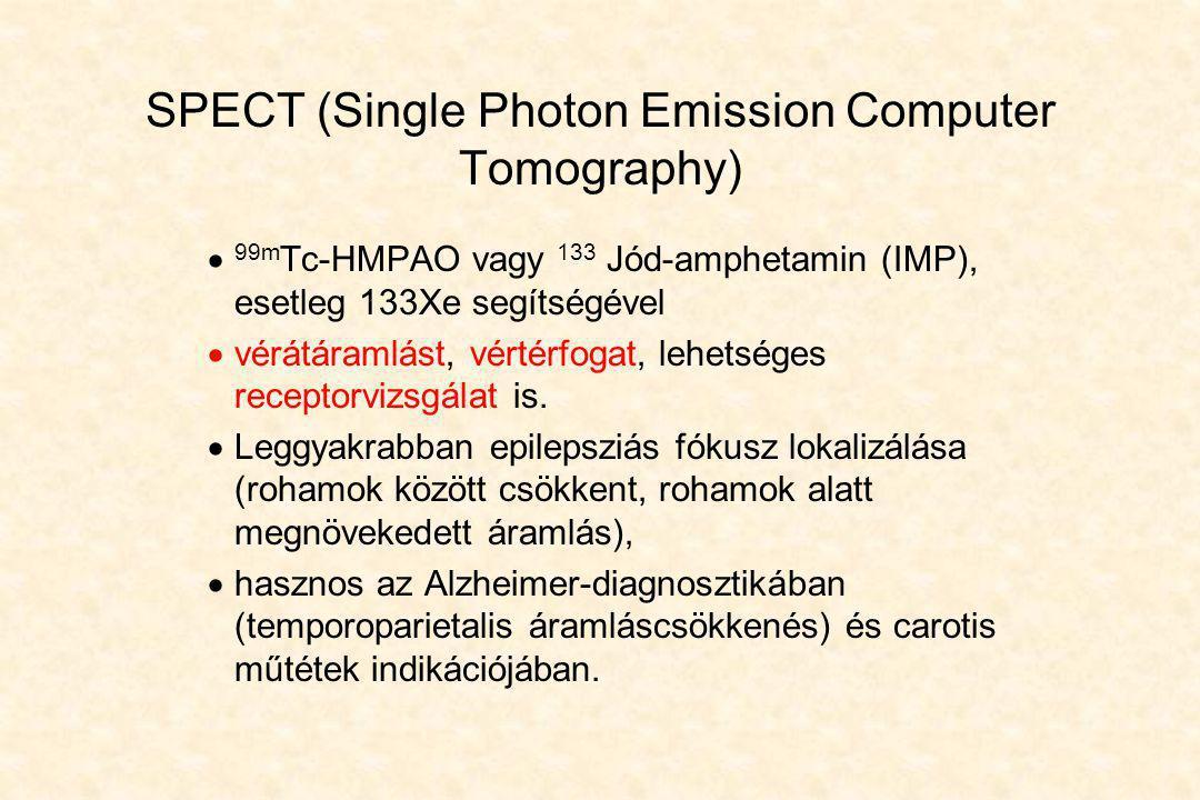 SPECT (Single Photon Emission Computer Tomography)