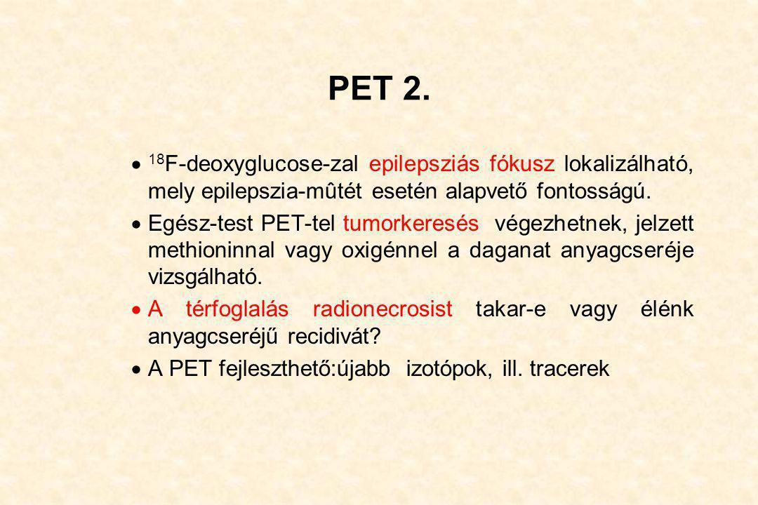 PET 2. 18F-deoxyglucose-zal epilepsziás fókusz lokalizálható, mely epilepszia-mûtét esetén alapvető fontosságú.