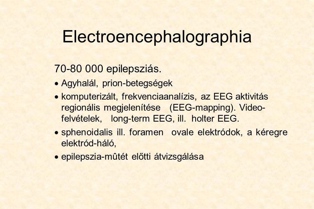 Electroencephalographia