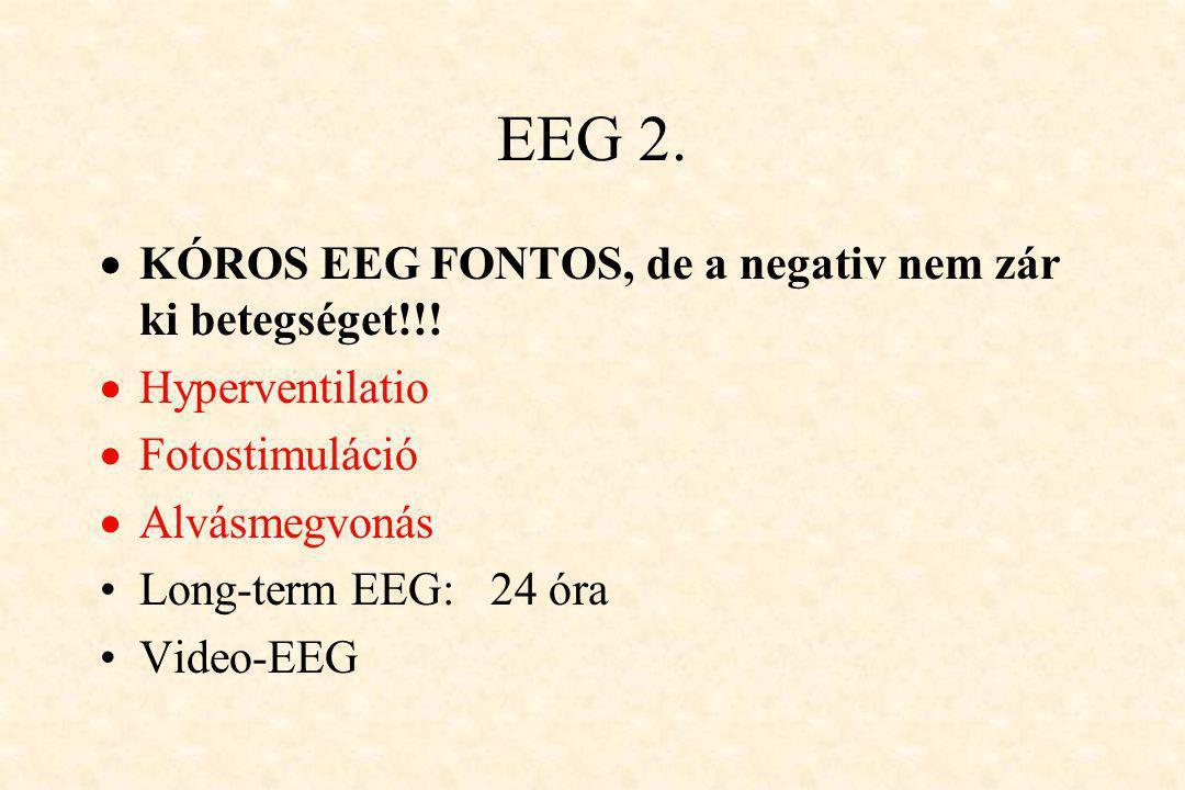 EEG 2. KÓROS EEG FONTOS, de a negativ nem zár ki betegséget!!!